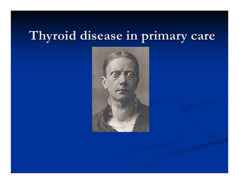 dr for thyroid disease picture 6