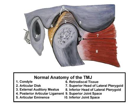 temporomandibular joint popping picture 7