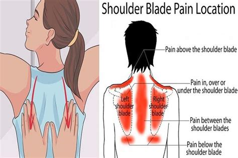 can indigestion cause pain btween your shoulder blades picture 5