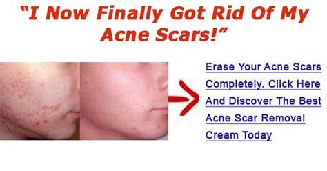 acne scar treatment in mercury drug store picture 10