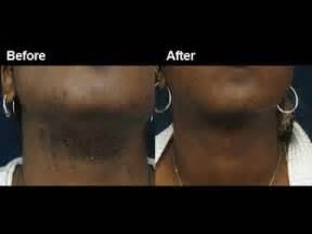 hair removal and black skin and detroit picture 2