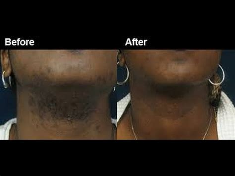 revitol hair removal and african american picture 9