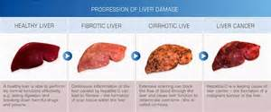 what are the early signs of liver damage picture 18