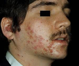 herpes in the face picture 7