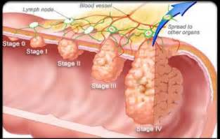 pictures of colon cancer picture 2