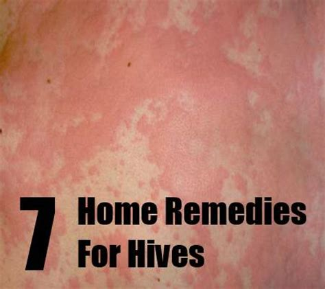 cure for hives picture 13