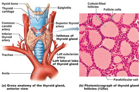 colloid and follicular cells in thyroid picture 3