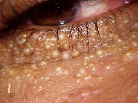 cure for syringoma treatment picture 10