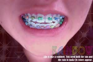 colored braces h picture 10
