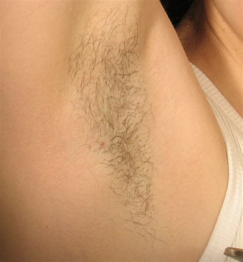 laser hair removal queens picture 6