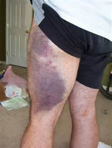 bacl leg bruises on muscle picture 11