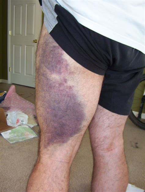 bacl leg bruises on muscle picture 1