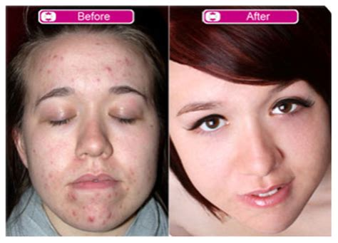 acne scarring picture 9