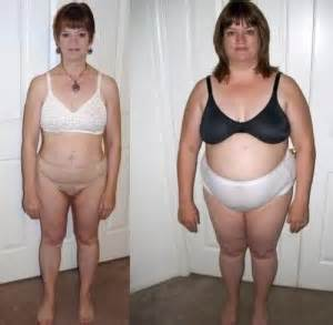 lap band and weight loss picture 11