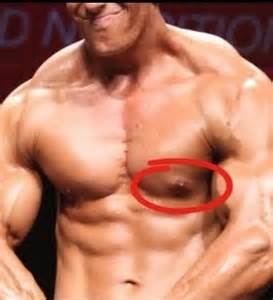 can taking testosterone cause gynecomastia picture 1