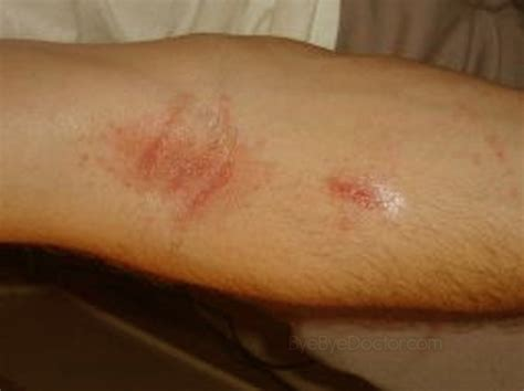 mineral salt and herpes picture 10