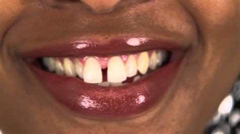 gap in the front teeth picture 2