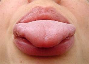 does garlic help white spot on tongue picture 13