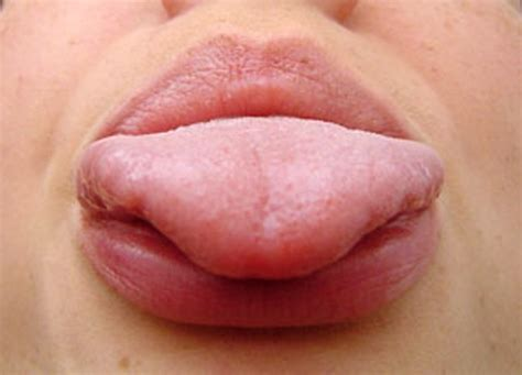symptoms of herpes of the tongue picture 3
