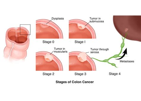 does colon cancer hurt picture 3