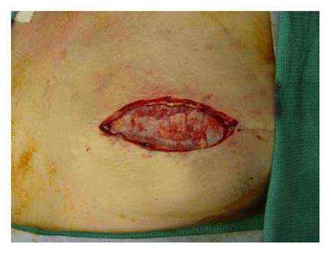 skin sparring mastectomy picture 7