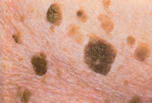 skin cancer attenant caratosis picture 13