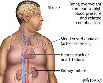 Death, illness, or physical damages due to colon picture 3