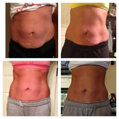 weight loss body wraps pasco florida picture 6