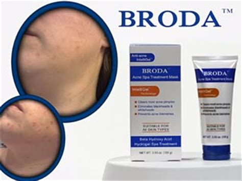 acne treatment as seen on tv picture 7