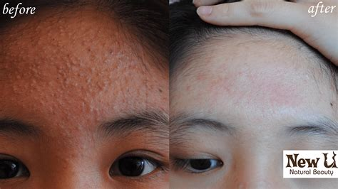 herbalist for acne las vegas picture 6
