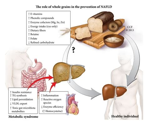 how many people are diagnosed with fatty liver picture 6