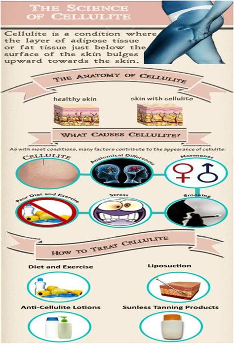 How to get rid of cellulite hormone picture 7