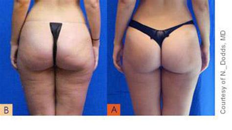 smoothshapes cellulite treatment where picture 1