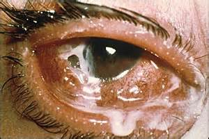 pink eye or bacterial conjunctivitis picture 7