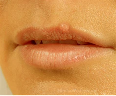 blisters on lips picture 1