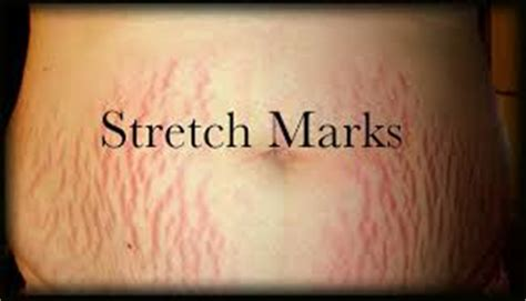 can stretch mark go away picture 11