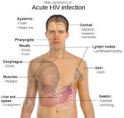 symptoms of hiv by pozziepinoy picture 11