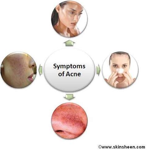 acne symptoms picture 9