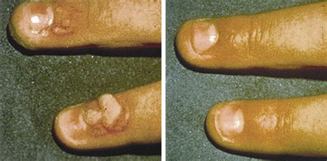 wart removals picture 7