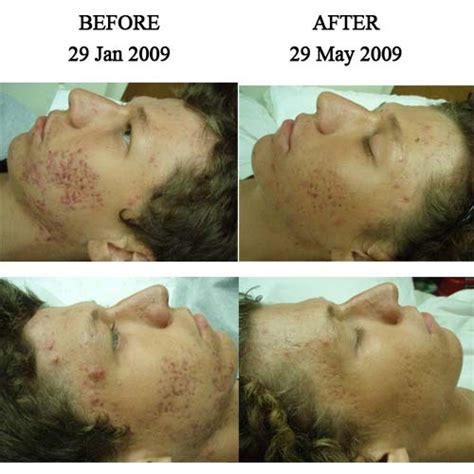acupunture for acne picture 13