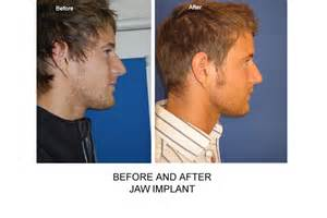 breast enlargement on finance picture 7
