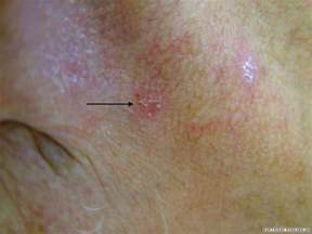 herpes on head of penis picture 5