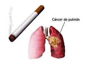 sintomas ng secondhand smoke picture 10