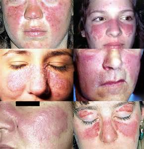 rash on face and joint pain picture 17