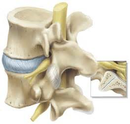 spinal facet joint arthrography and facilities picture 6