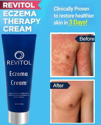 revitol does it work picture 7
