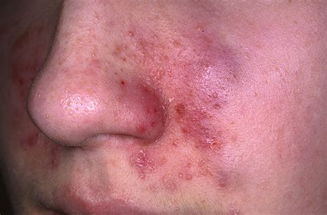 pics of skin problems in s picture 2