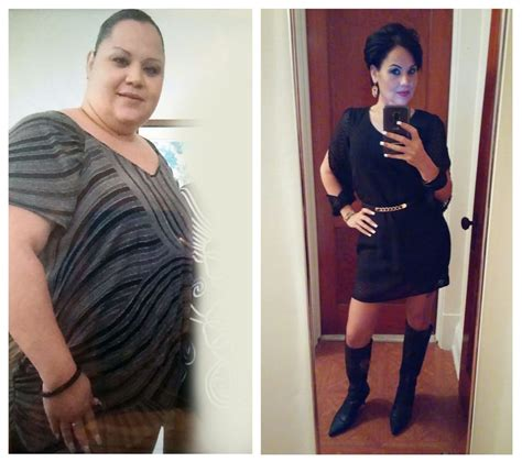 will gastric byp work if i'm weight loss picture 10
