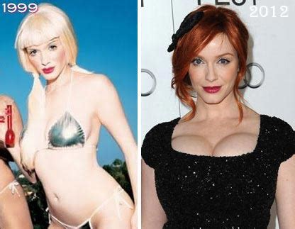 actresses and breast augmentation jobs picture 2