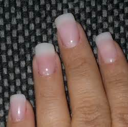 acrylic nail fungus symptoms picture 15